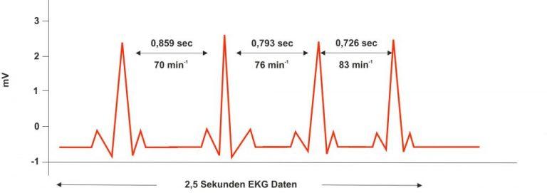 Herzratenvariabilität-HeartMath